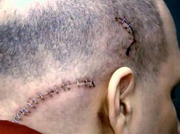 Some of Joseph Lozito's injuries. Credit: WCBS 2